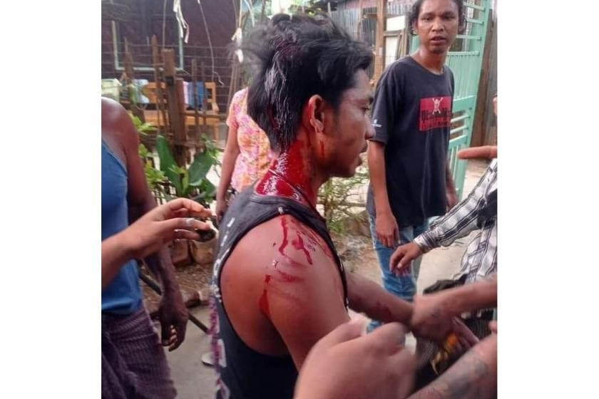 A man who was injured by soldiers on Tuesday in Myitnge, Mandalay Region (Supplied)